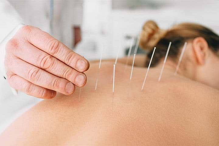 Technique Of Dry Needling
